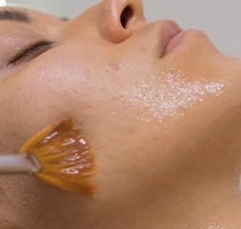 Cuidados faciales de la piel durante el verano
